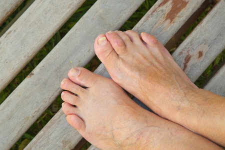 Facts about Hammertoes