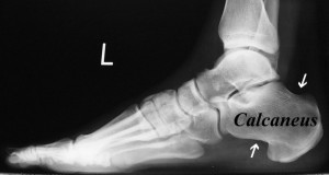 049 Figure-1A-Normal-lateral-foot-x-Ray-1024x547
