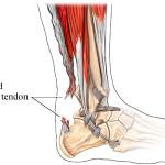 051 Ruptured-Achilles-Tendon