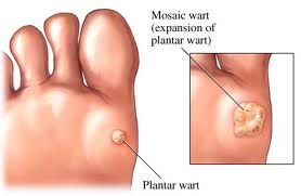 067 Plantar and Mosaic warts